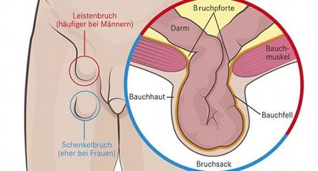 Leistenbruch-Spezialist-1030-Wien-Dr-Christoph-Sperker